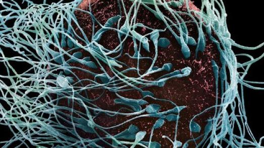 foto-spermatozoidov-pod-mikroskopom