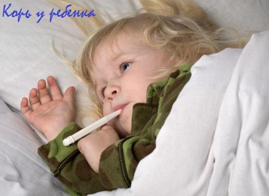 корь у детей лечение