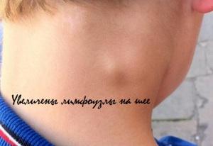 увеличены лимфоузлы на шее