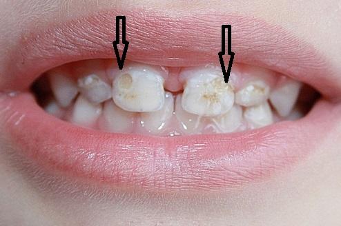 кариес молочных зубов лечение
