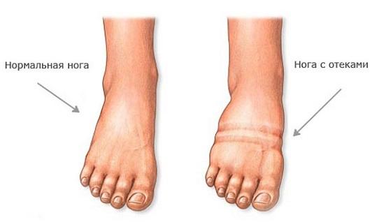 отеки ног у беременных