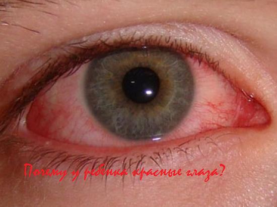 почему у ребенка красные глаза