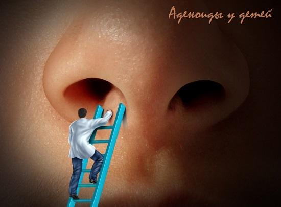 аденоиды симптомы степени лечение