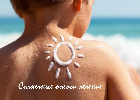 солнечные ожоги симптомы