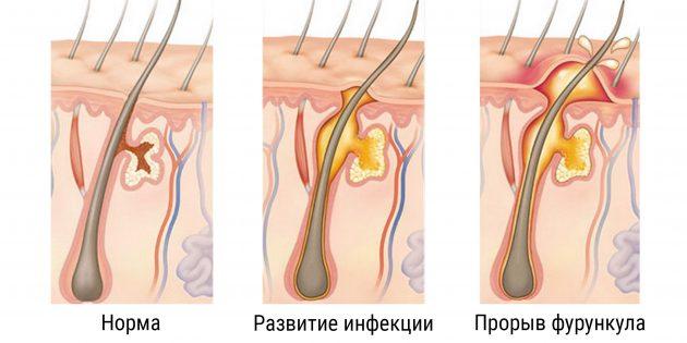 фурункул лечение